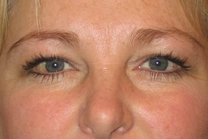 Eyeliner (healed)