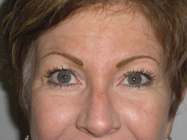 Eyebrows (immediately after)