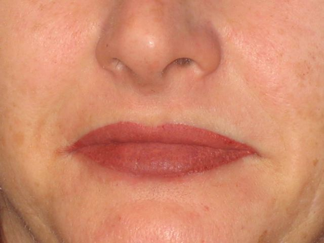 Full Lips (immediately after)